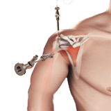 Arthroscopic Rotator Cuff Repair