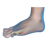 Common Toe Deformities