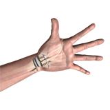 Wrist Joint Replacement